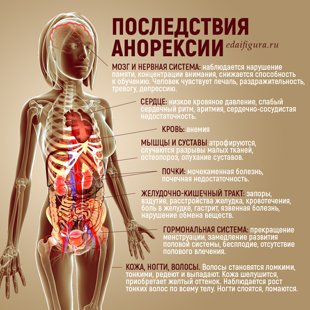 анорексия фото
