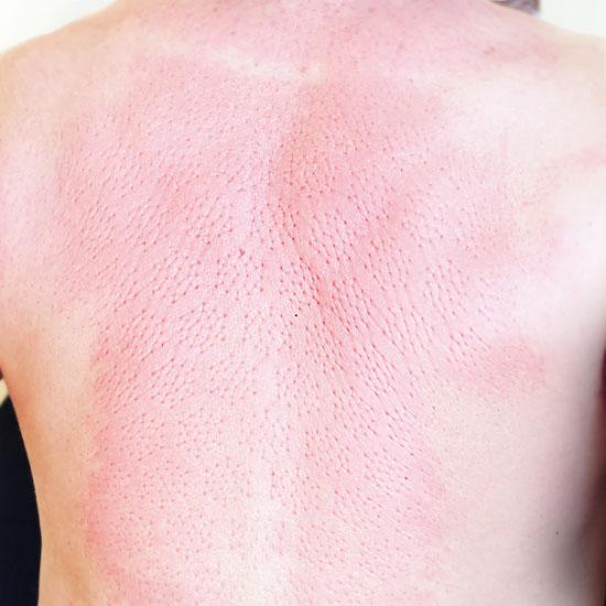 фото спины человека